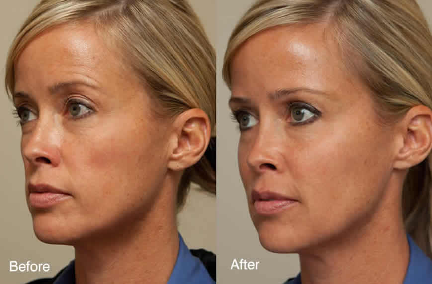 Thermage Micro Needling treatments in Houston, Texas